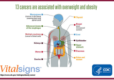 Overweight & Obesity Associated With 13 Types of Cancer